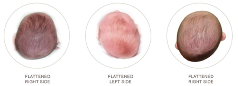 HEAD plagio