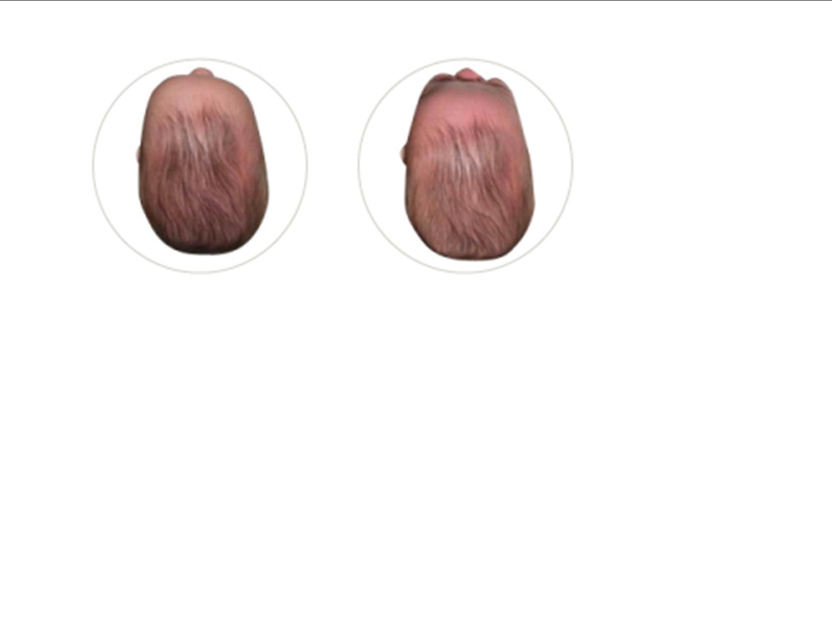 Head Shape Deformities - EARLYstartEARLYstart